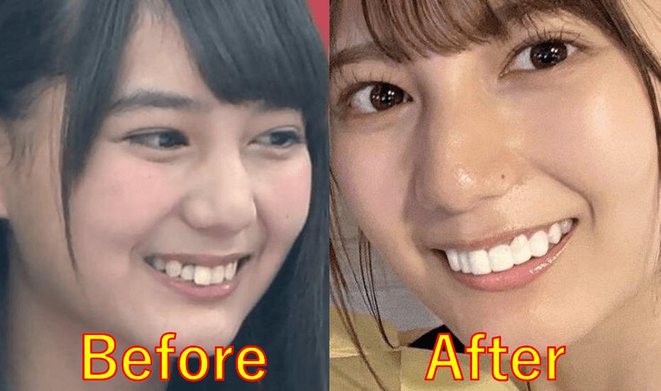 小坂菜緒が前歯を矯正した後(アフター)の顔