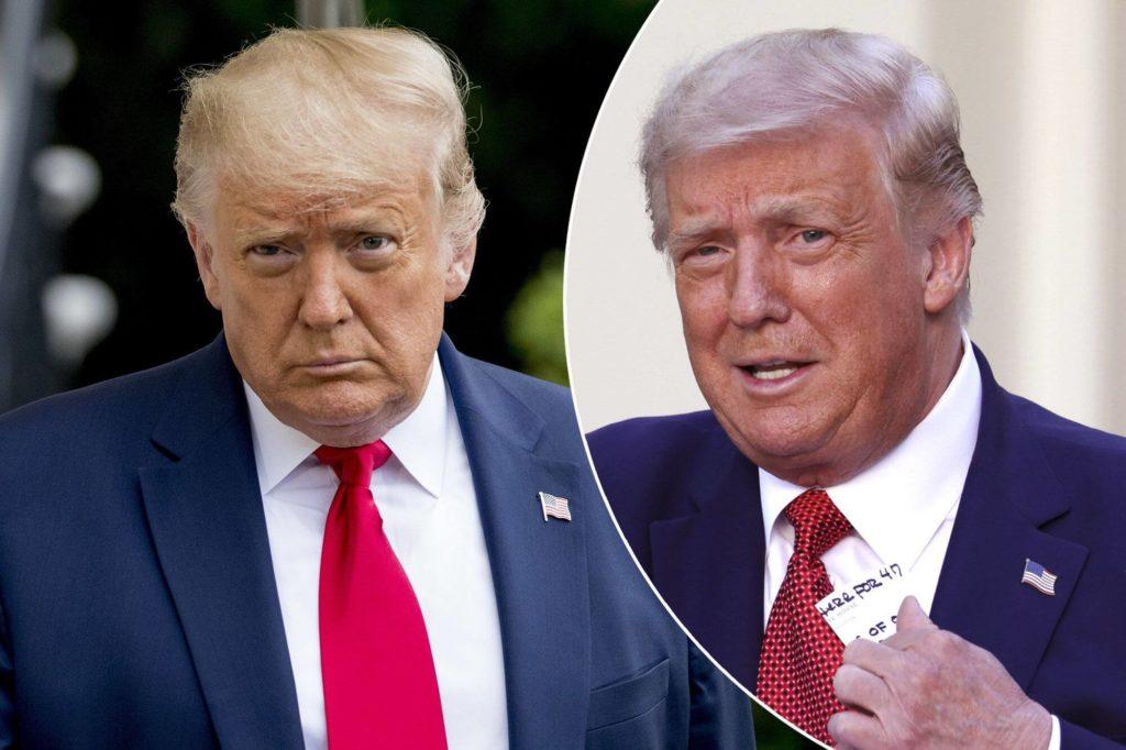 トランプ大統領が突然白髪になった理由は?
