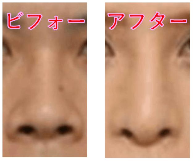 ローランドの鼻は整形でどう変わった?