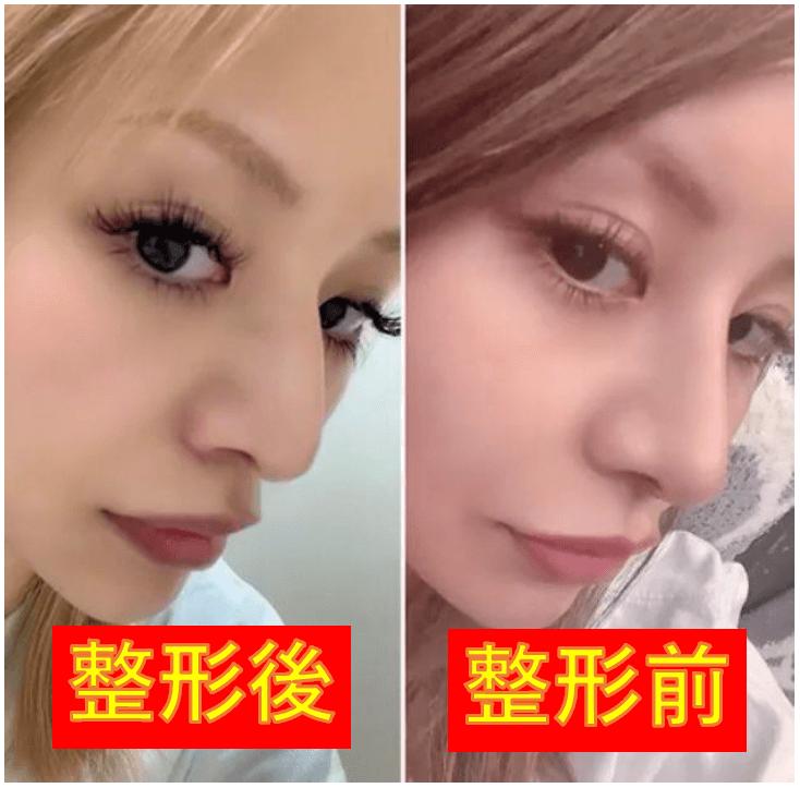門りょうの顔はどう変わった?画像比較