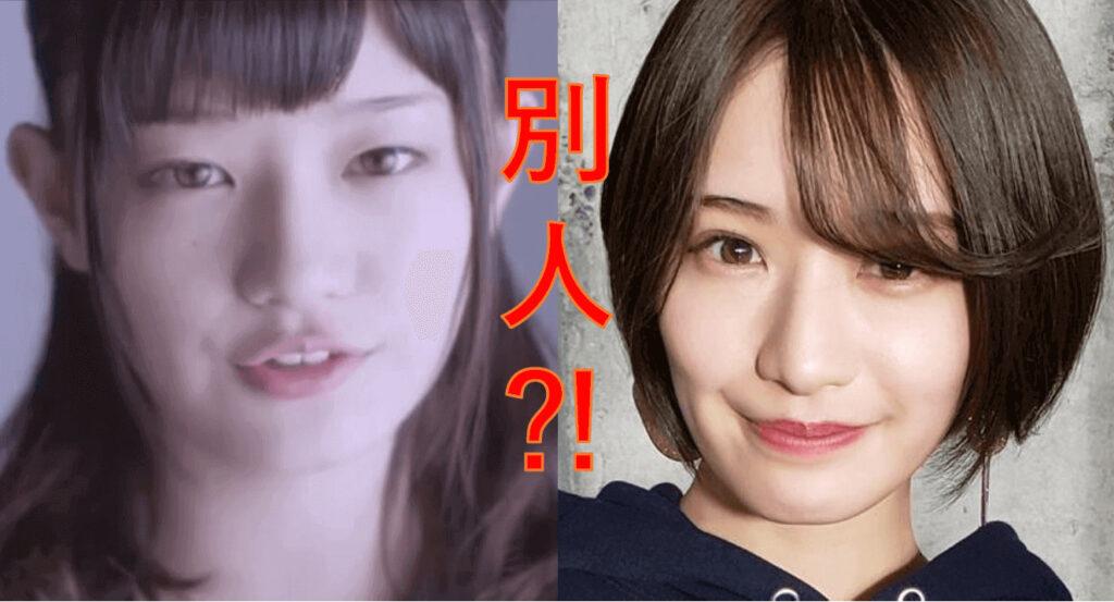 中田花奈は整形?