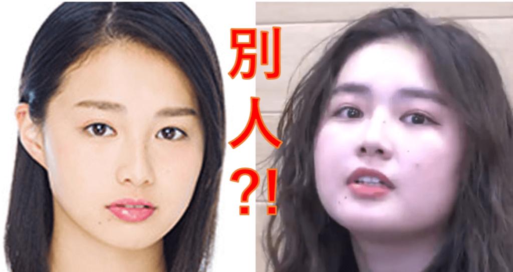 箭内夢菜(ゆめっぺ)の顔は太った?