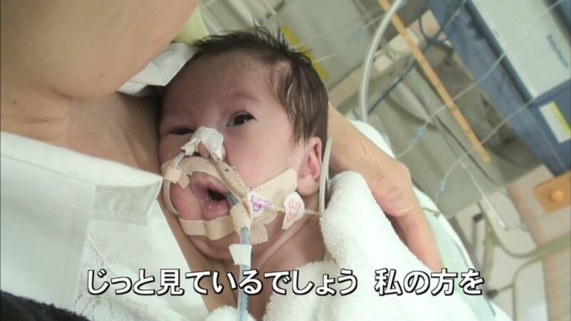 野田真輝 (のだ まさき) は生まれてすぐに集中治療室へ!